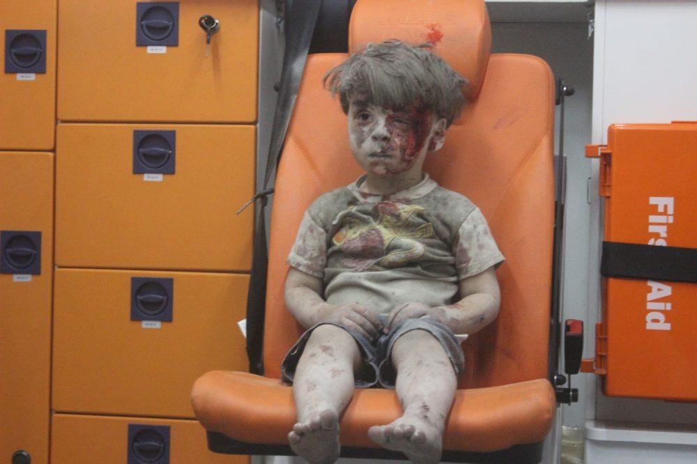 https://roar.sgp1.digitaloceanspaces.com/Reports/2016/08/Aleppo-Boy.jfif_-e1471606486555.jpg
